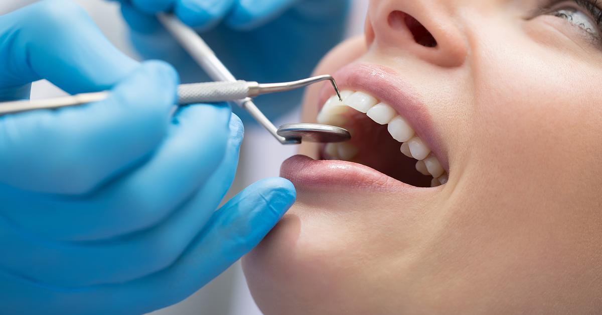 Bis zu 170 Euro: Was die teure Zahnreinigung wirklich bringt